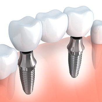 Animation of implant supported fixed bridge