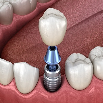 Animation of implant tooth replacement process
