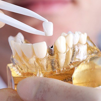 Model implant supported dental crown