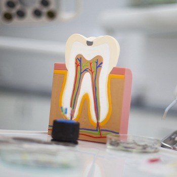 Model of the inside of a tooth before root canal therapy