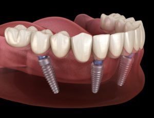 All-on-4 dental implants in Chesterton on bottom arch